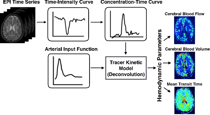 Figure 2 for Accelerated Reconstruction of Perfusion-Weighted MRI Enforcing Jointly Local and Nonlocal Spatio-temporal Constraints