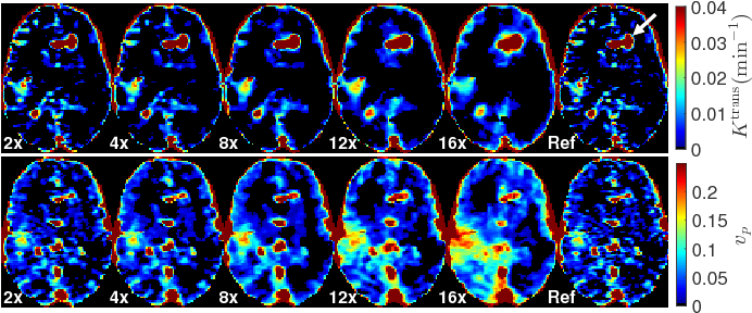 Figure 3 for Accelerated Reconstruction of Perfusion-Weighted MRI Enforcing Jointly Local and Nonlocal Spatio-temporal Constraints