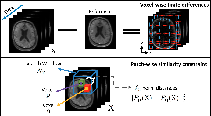 Figure 1 for Accelerated Reconstruction of Perfusion-Weighted MRI Enforcing Jointly Local and Nonlocal Spatio-temporal Constraints