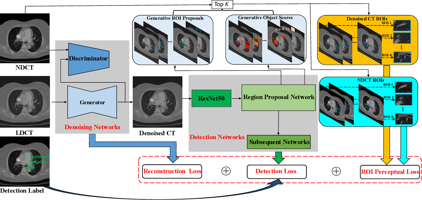 Figure 1 for Lesion-Inspired Denoising Network: Connecting Medical Image Denoising and Lesion Detection