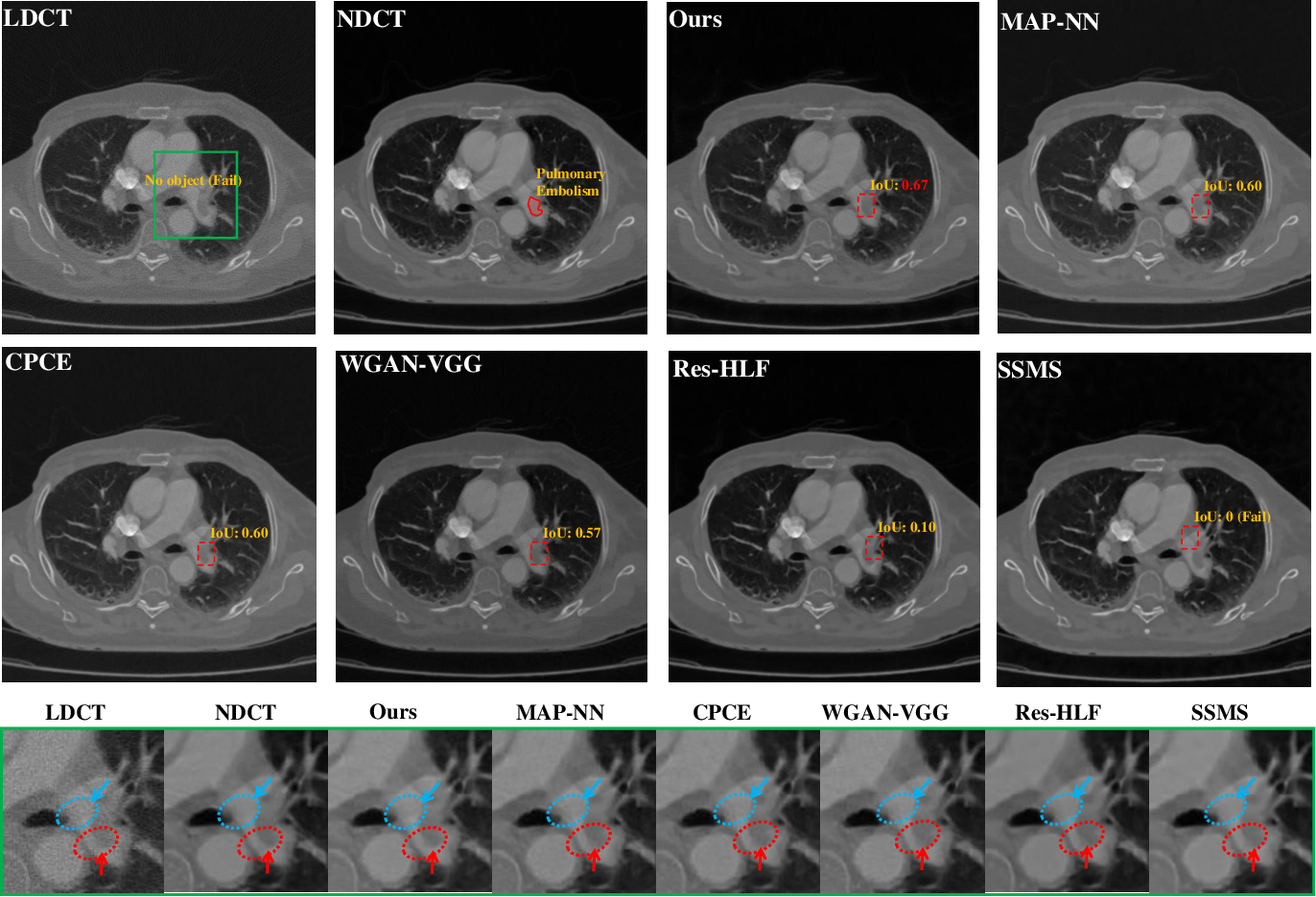 Figure 4 for Lesion-Inspired Denoising Network: Connecting Medical Image Denoising and Lesion Detection