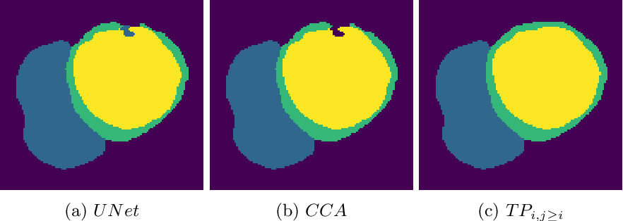 Figure 4 for A persistent homology-based topological loss function for multi-class CNN segmentation of cardiac MRI
