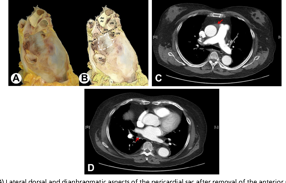 Figure 1 from Anatomy and Physiology of the Pericardium. - Semantic ...
