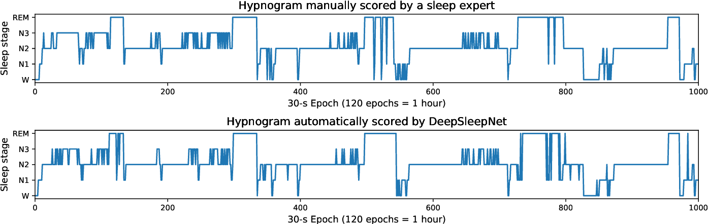 Figure 2 for DeepSleepNet: a Model for Automatic Sleep Stage Scoring based on Raw Single-Channel EEG