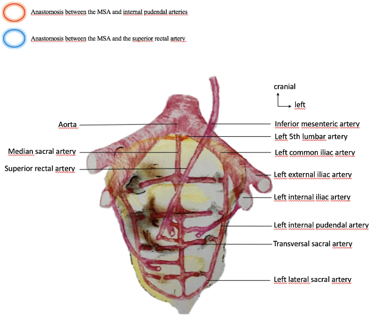 Fetal Median Sacral Artery Anatomy Study By Micro Ct Imaging