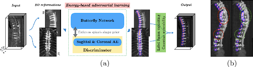 Figure 1 for Btrfly Net: Vertebrae Labelling with Energy-based Adversarial Learning of Local Spine Prior