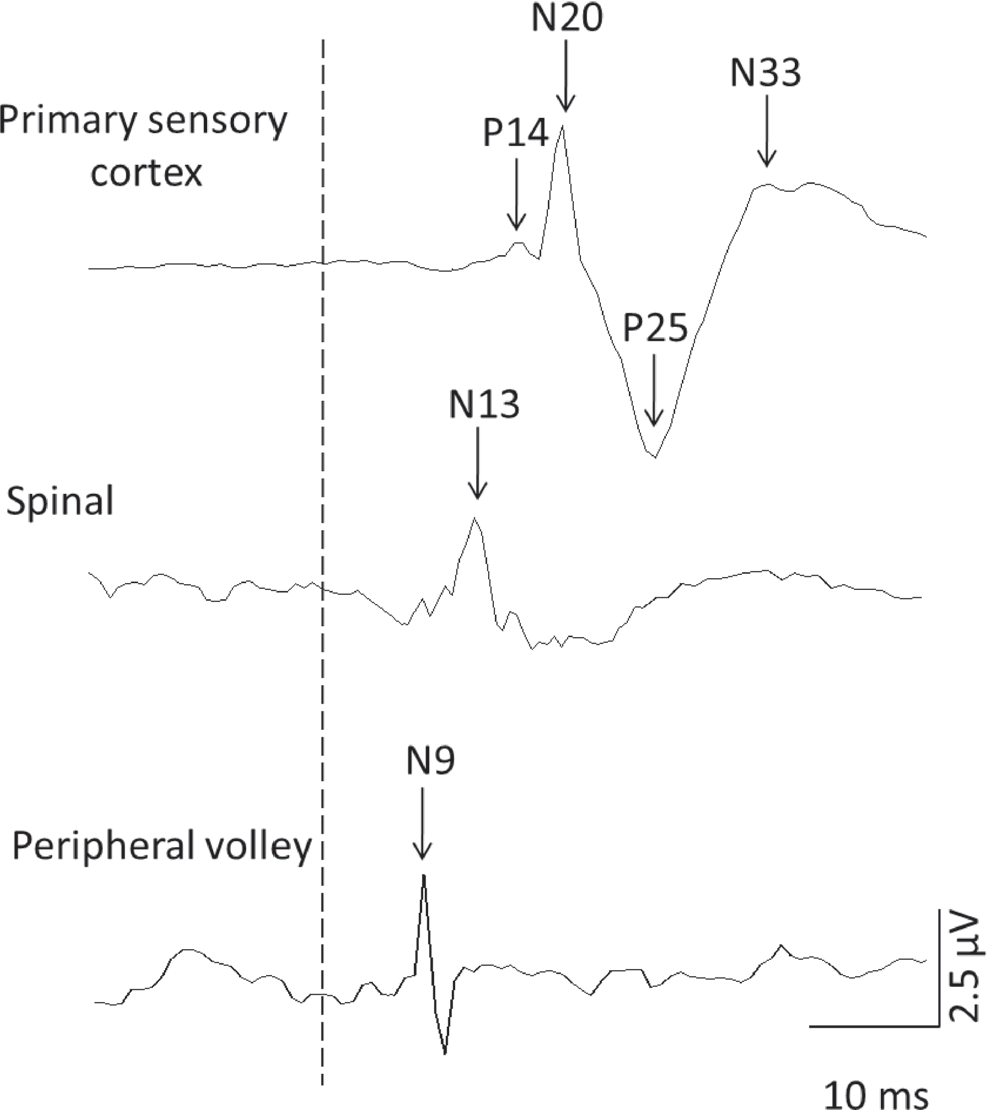 Primary Sensory And Motor Cortex Excitability Are Co Modulated In