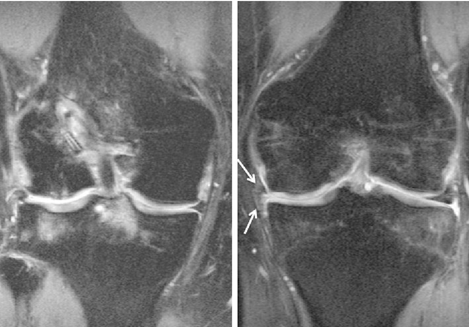 One-year clinical and MR imaging outcome after partial meniscal