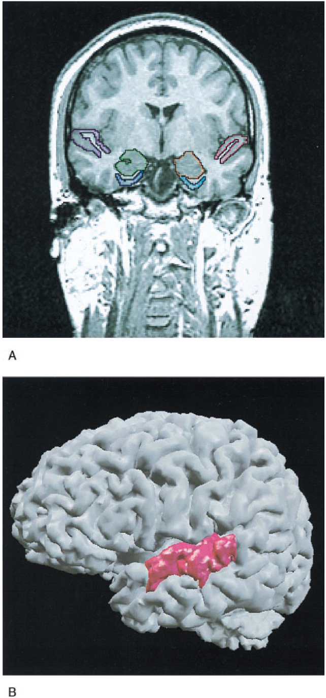Schizotypal Personality Disorder And Mri Abnormalities Of Temporal