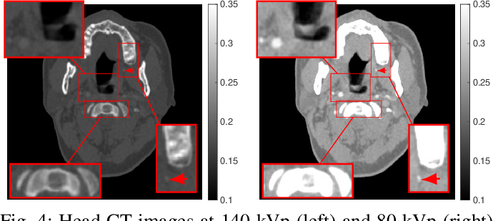 Figure 4 for An Improved Iterative Neural Network for High-Quality Image-Domain Material Decomposition in Dual-Energy CT