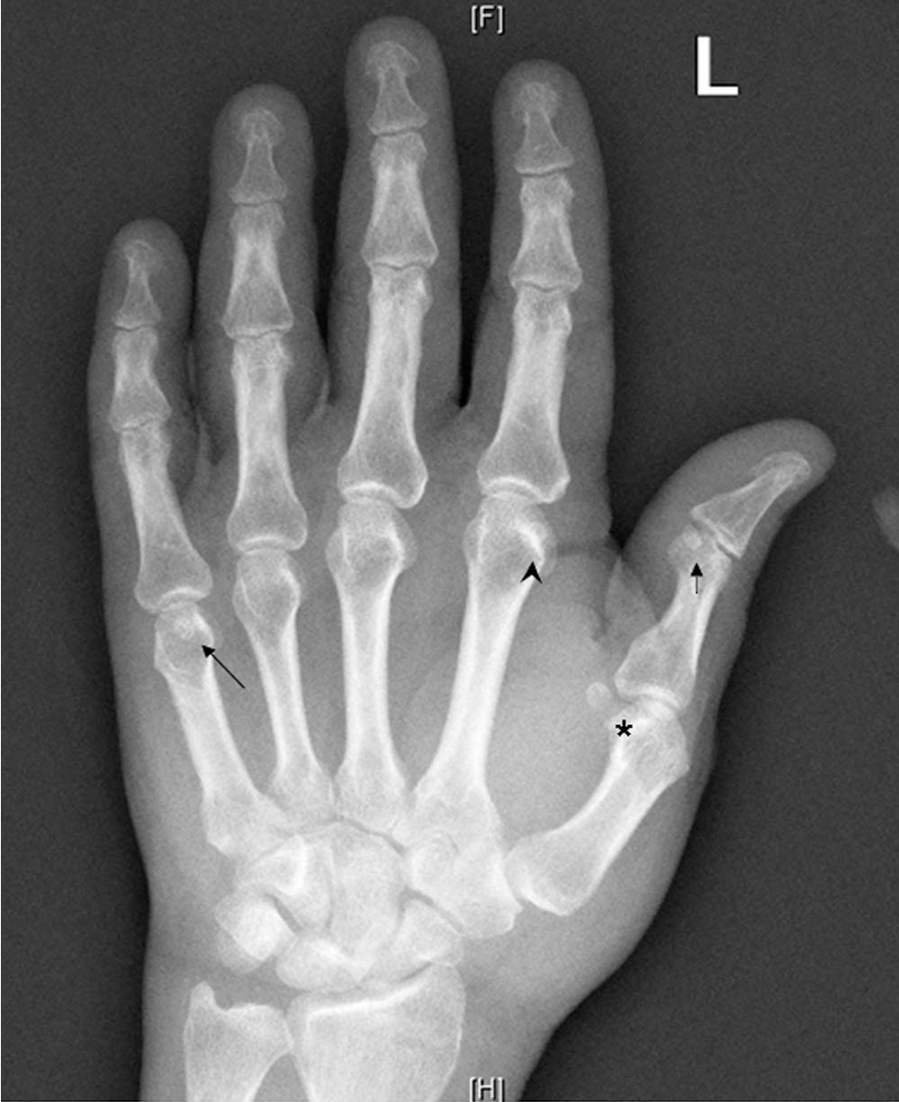 Sesamoid And Accessory Bones Of The Hand An Epidemiologic Survey In