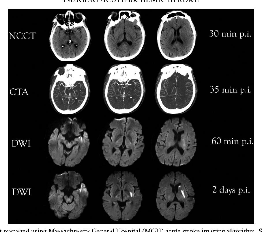 Figure 16 20 from Imaging acute ischemic stroke  - Semantic Scholar