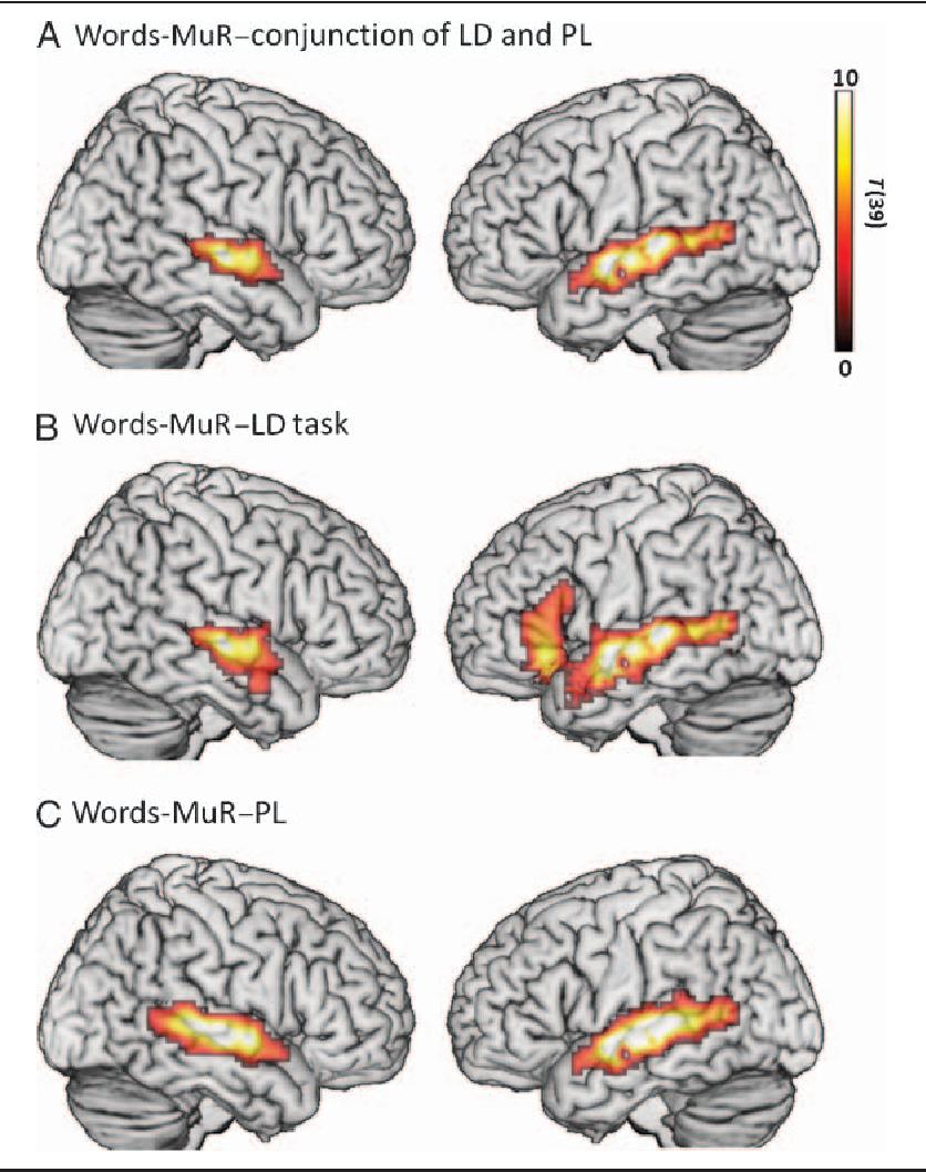 Left Inferior Frontal Gyrus Semantic Scholar