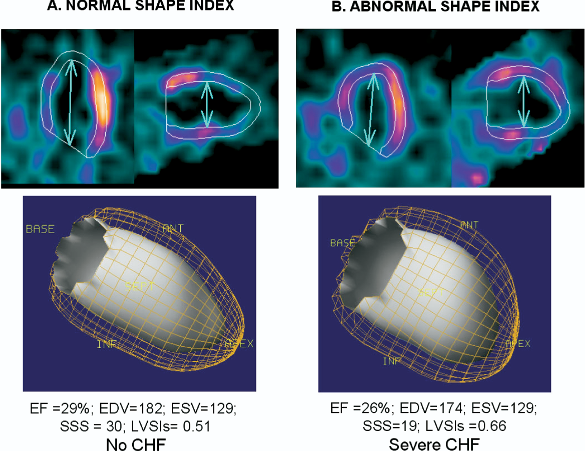 Figure 15 from Quantitation in gated perfusion SPECT imaging