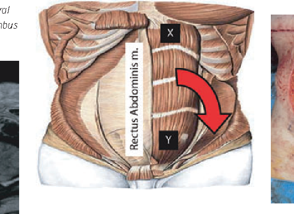 Vertical rectus abdominis flap reconstruction in patients with ...