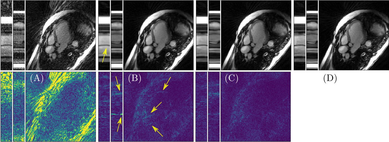Figure 4 for An End-To-End-Trainable Iterative Network Architecture for Accelerated Radial Multi-Coil 2D Cine MR Image Reconstruction