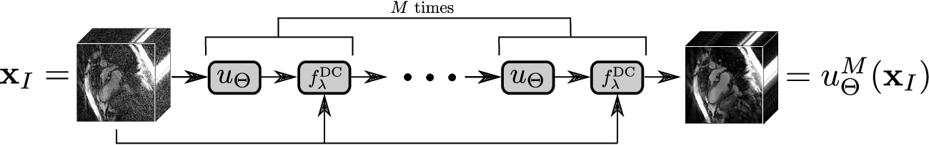 Figure 1 for An End-To-End-Trainable Iterative Network Architecture for Accelerated Radial Multi-Coil 2D Cine MR Image Reconstruction