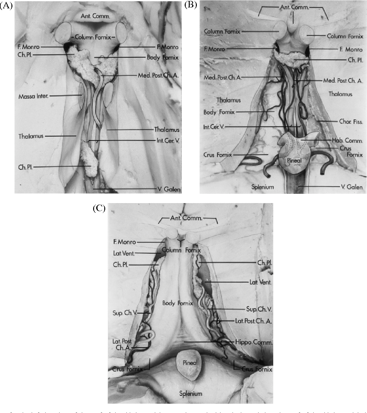 Pineal region tumor: surgical anatomy and approach - Semantic Scholar