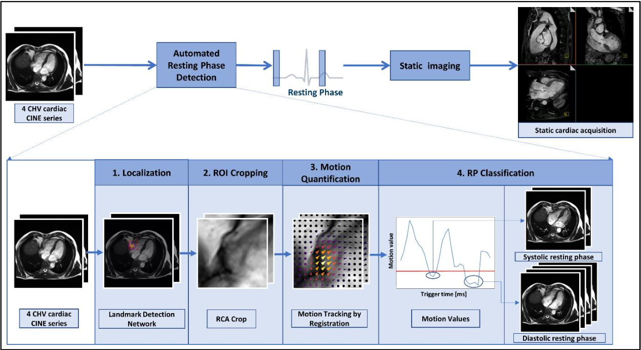 Figure 1 for Automated Cardiac Resting Phase Detection Targeted on the Right Coronary Artery