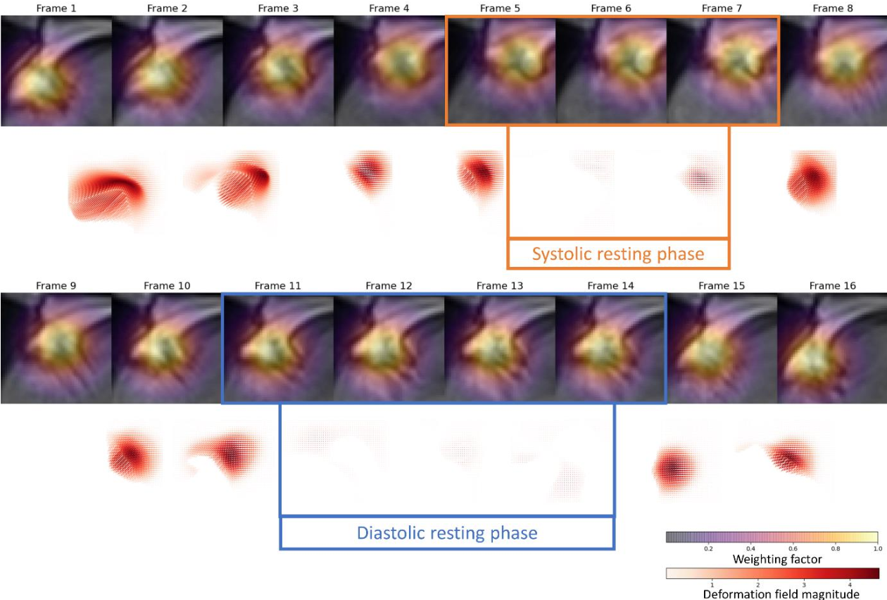 Figure 3 for Automated Cardiac Resting Phase Detection Targeted on the Right Coronary Artery