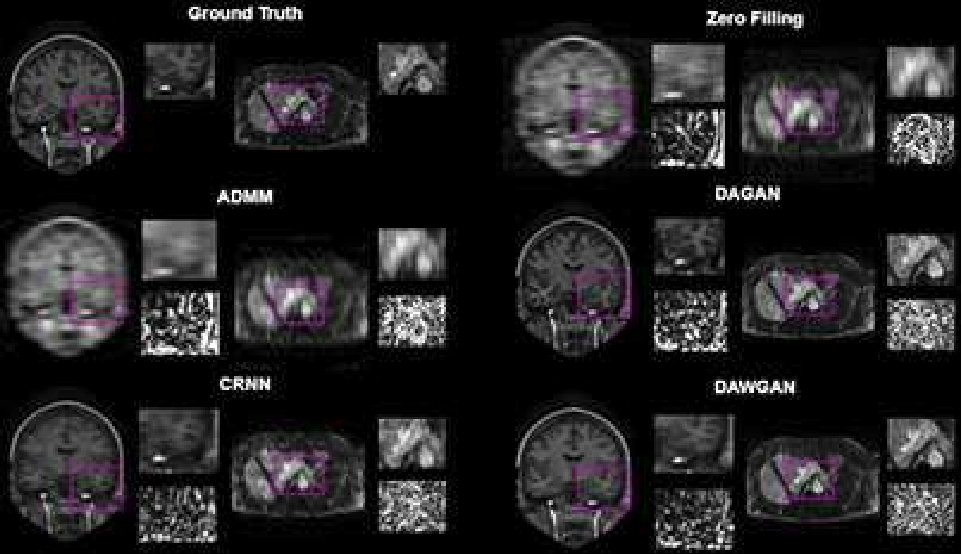 Figure 3 for Deep Attentive Wasserstein Generative Adversarial Networks for MRI Reconstruction with Recurrent Context-Awareness