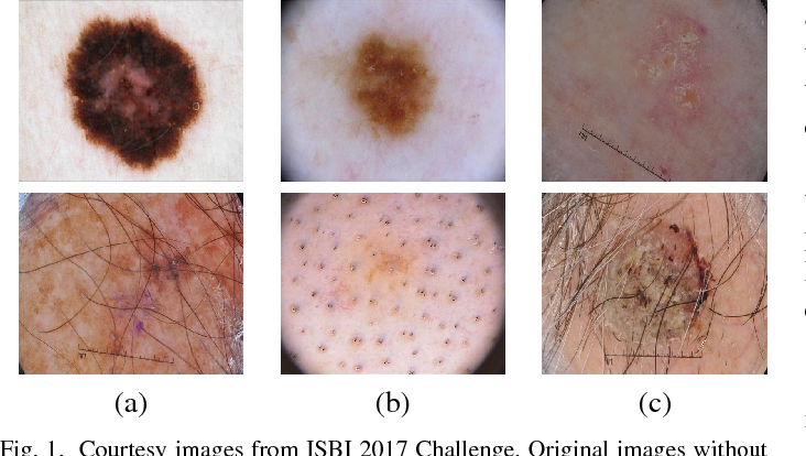 Figure 1 for Multi-class Semantic Segmentation of Skin Lesions via Fully Convolutional Networks
