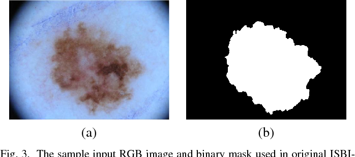 Figure 3 for Multi-class Semantic Segmentation of Skin Lesions via Fully Convolutional Networks