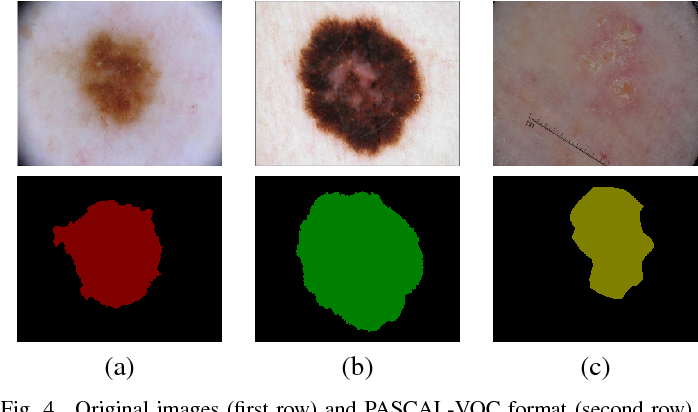 Figure 4 for Multi-class Semantic Segmentation of Skin Lesions via Fully Convolutional Networks