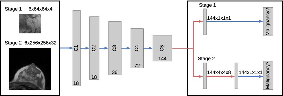 Figure 1 for Multi Scale Curriculum CNN for Context-Aware Breast MRI Malignancy Classification