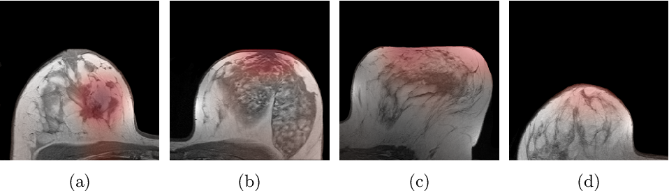 Figure 4 for Multi Scale Curriculum CNN for Context-Aware Breast MRI Malignancy Classification