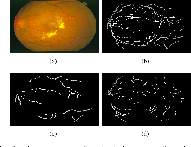 Figure 2 for Classification of Large-Scale Fundus Image Data Sets: A Cloud-Computing Framework