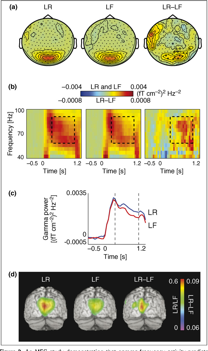 Figure 3 from Human gamma-frequency oscillations associated with