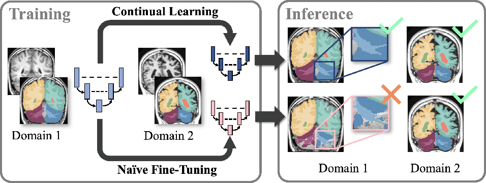 Figure 1 for Importance Driven Continual Learning for Segmentation Across Domains