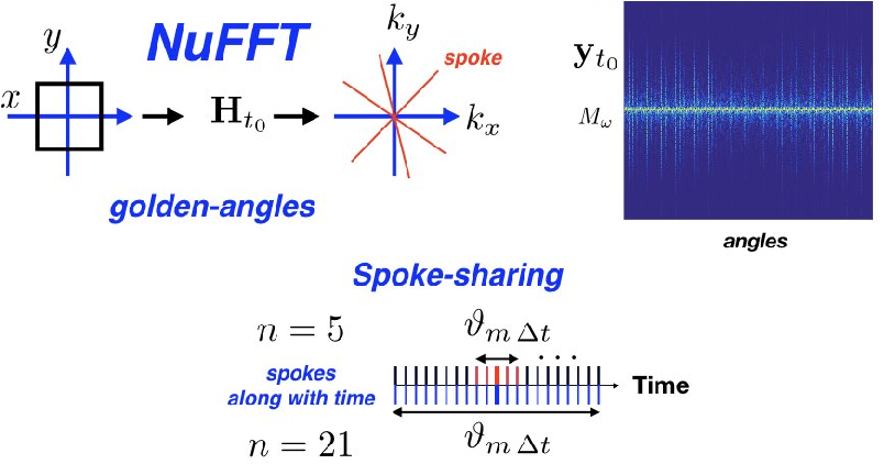 Figure 1 for Time-Dependent Deep Image Prior for Dynamic MRI