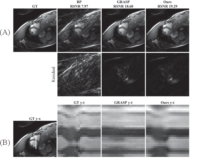 Figure 4 for Time-Dependent Deep Image Prior for Dynamic MRI