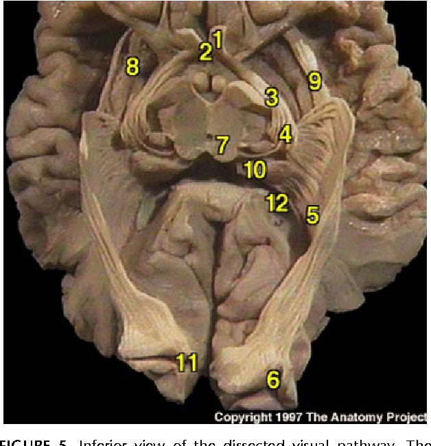 Figure 5 from Anatomy of the visual pathways. - Semantic Scholar