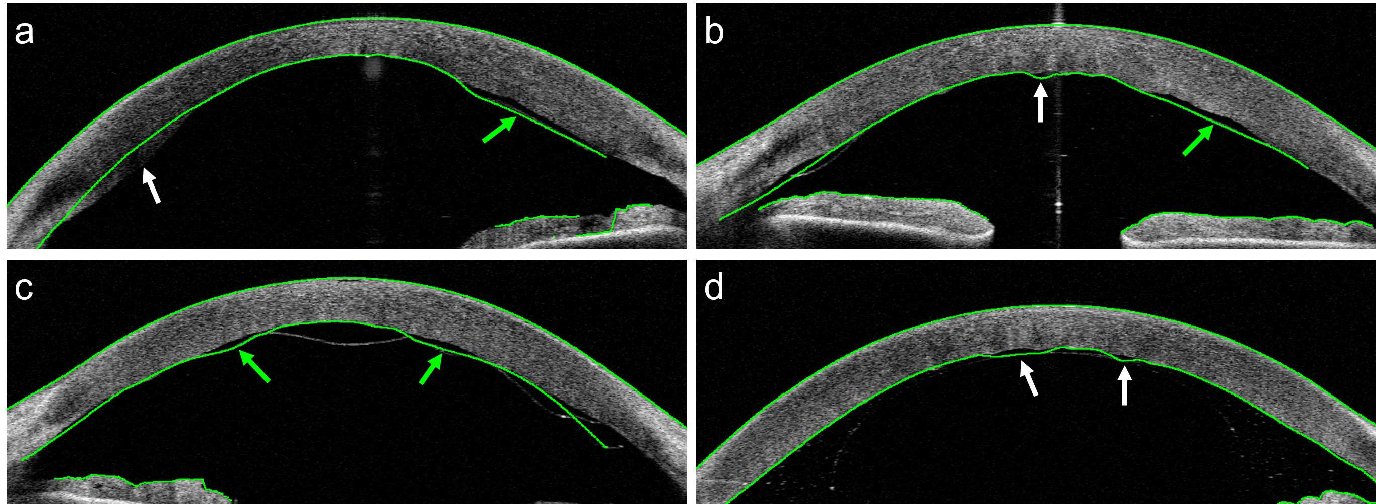 Figure 3 for Corneal Pachymetry by AS-OCT after Descemet's Membrane Endothelial Keratoplasty