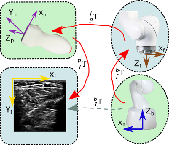 Figure 4 for Autonomous Robotic Screening of Tubular Structures based only on Real-Time Ultrasound Imaging Feedback