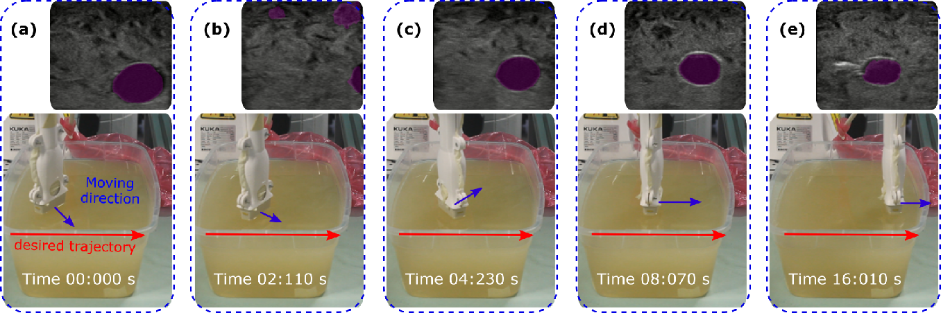 Figure 2 for Autonomous Robotic Screening of Tubular Structures based only on Real-Time Ultrasound Imaging Feedback