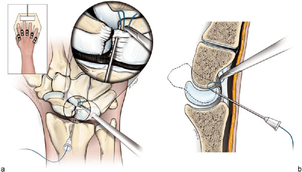 Diagnostic arthroscopy of wrist joint - Semantic Scholar