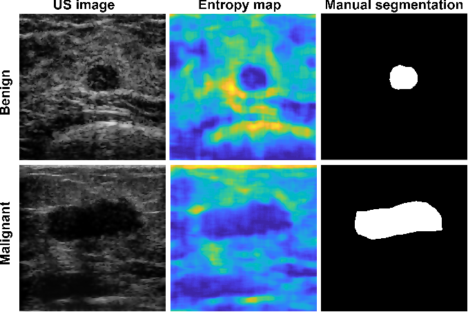 Figure 2 for Breast mass segmentation based on ultrasonic entropy maps and attention gated U-Net