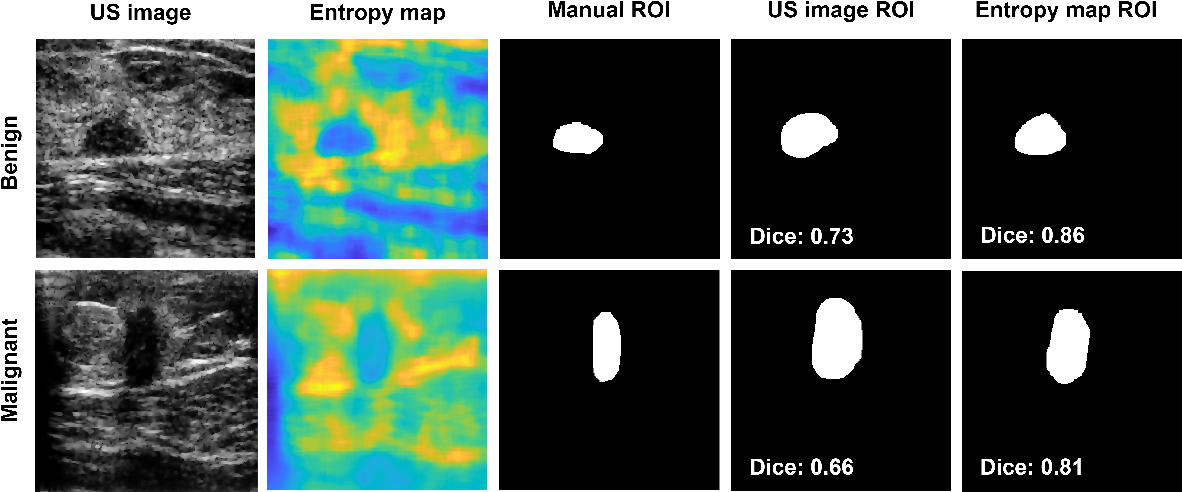 Figure 4 for Breast mass segmentation based on ultrasonic entropy maps and attention gated U-Net