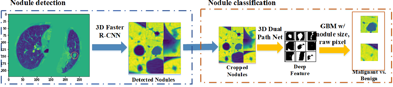 Figure 1 for DeepLung: 3D Deep Convolutional Nets for Automated Pulmonary Nodule Detection and Classification