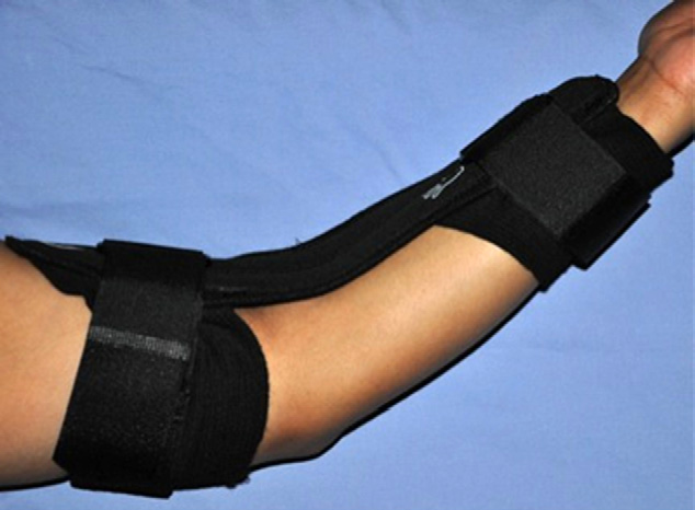 FIGURE 1: Hely & Weber orthosis used in this investigation. The orthosis can be adjusted to keep the elbow at 45° of flexion.
