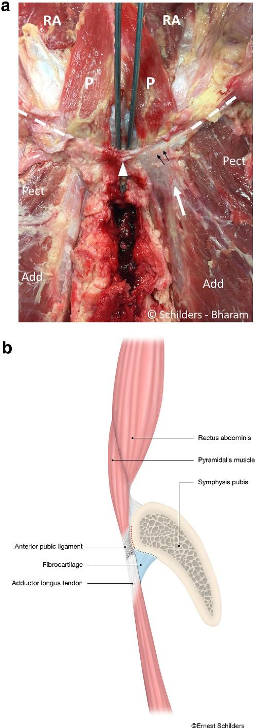 The pyramidalis–anterior pubic ligament–adductor longus complex ...