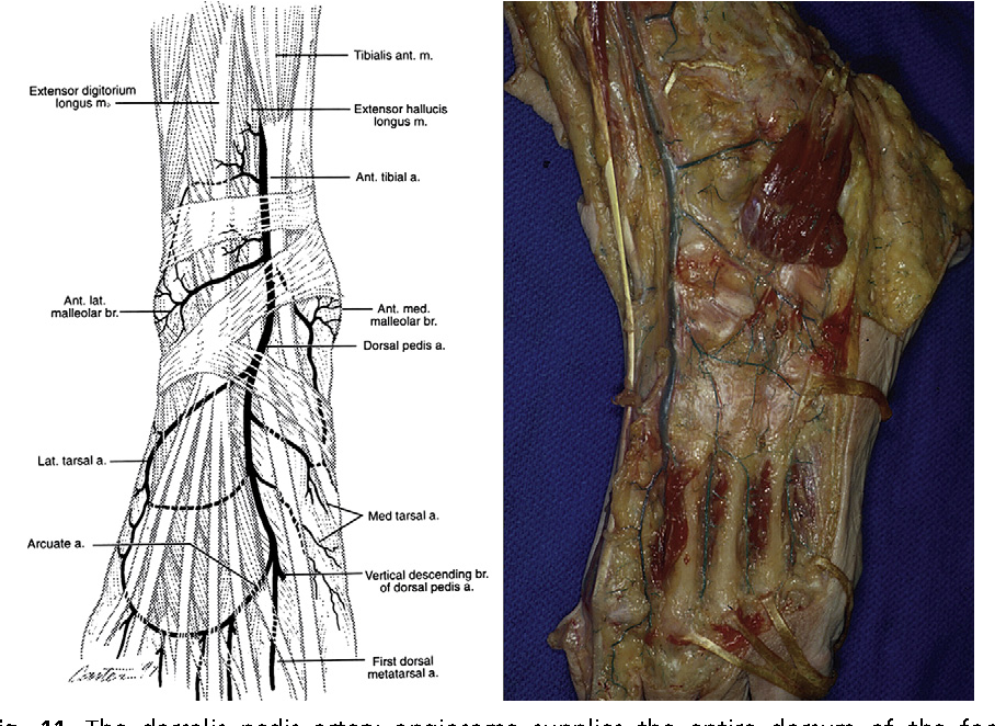 Figure 11 from Angiosomes and wound care in the diabetic foot ...