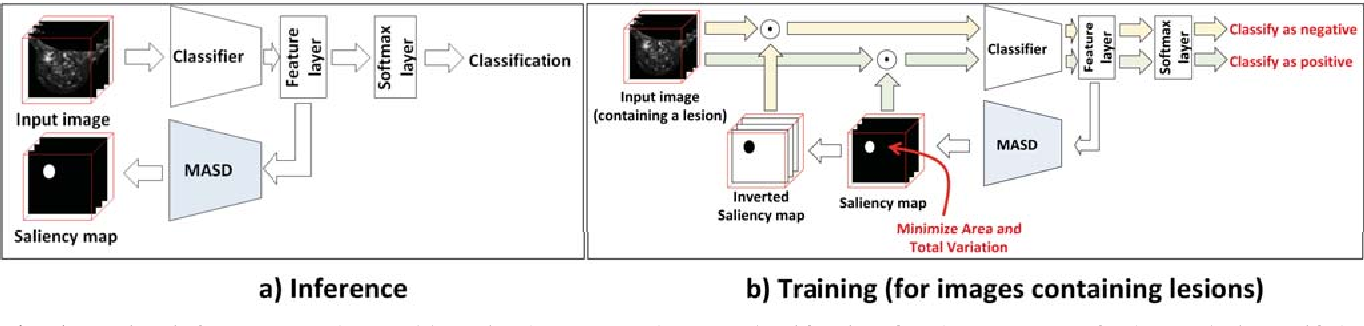 Figure 1 for Model Agnostic Saliency for Weakly Supervised Lesion Detection from Breast DCE-MRI