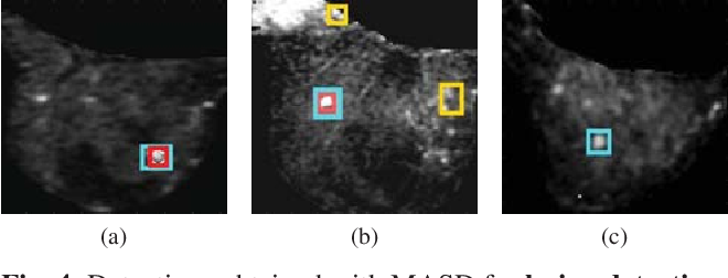 Figure 4 for Model Agnostic Saliency for Weakly Supervised Lesion Detection from Breast DCE-MRI