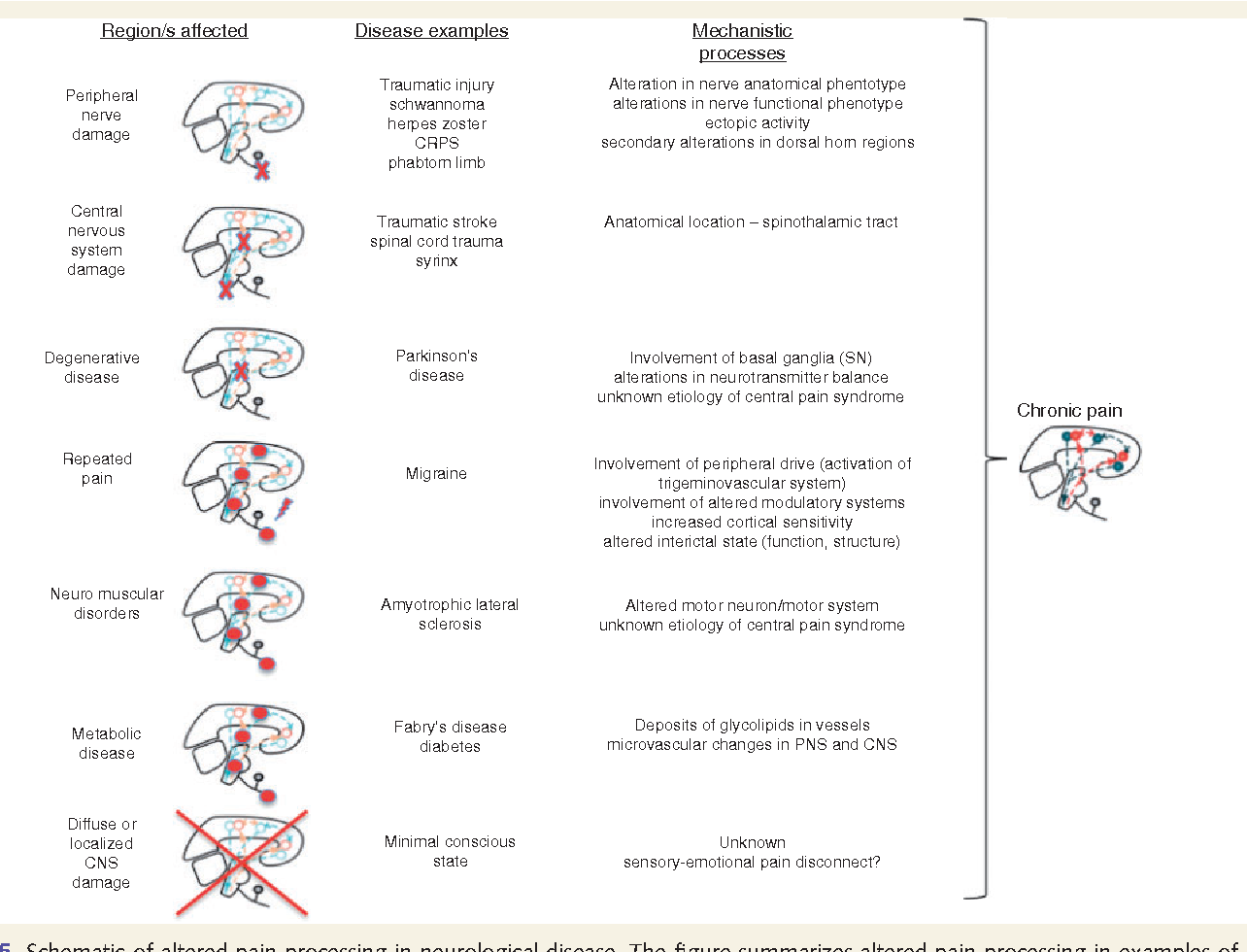 Figure 5 From Pain And Neurological Diseases Disease Prevalence Of