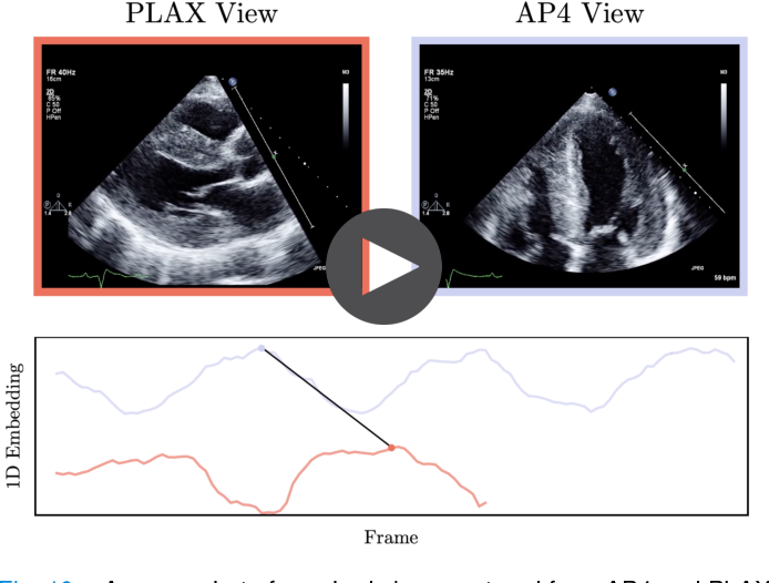 Figure 2 for Echo-SyncNet: Self-supervised Cardiac View Synchronization in Echocardiography